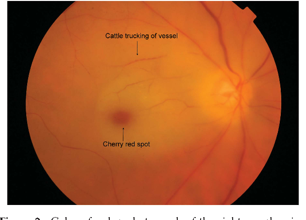 A Review Of Central Retinal Artery Occlusion Clinical Presentation