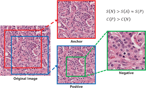 Figure 1 for Instance-aware Self-supervised Learning for Nuclei Segmentation