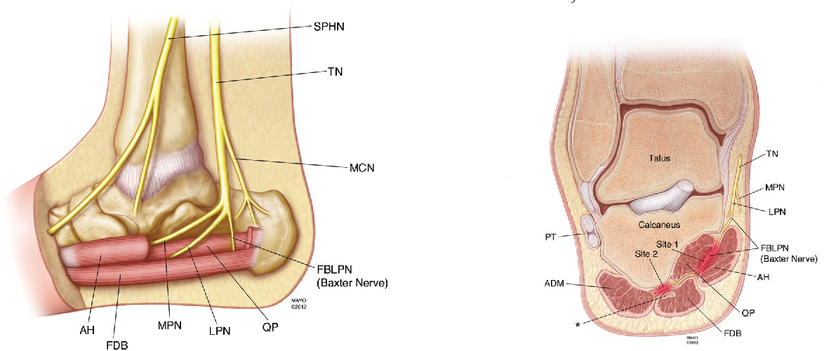 Sonographic Visualization Of The First Branch Of The Lateral Plantar