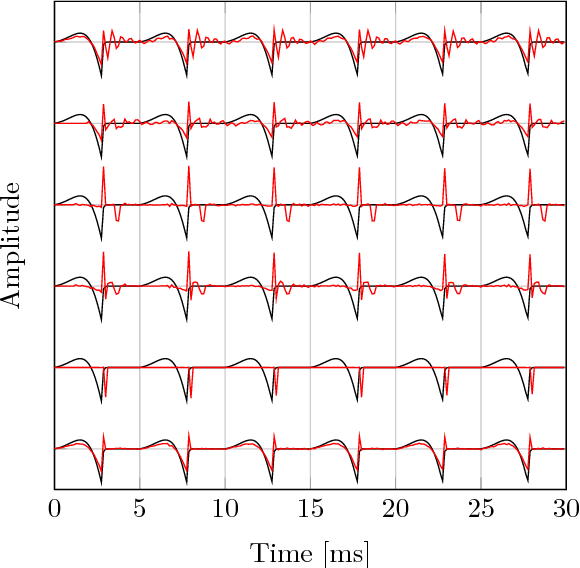Figure 1 for A Variational EM Method for Pole-Zero Modeling of Speech with Mixed Block Sparse and Gaussian Excitation