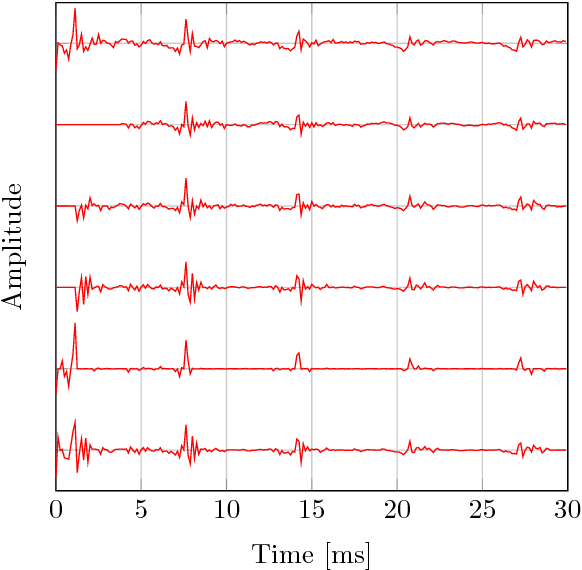 Figure 3 for A Variational EM Method for Pole-Zero Modeling of Speech with Mixed Block Sparse and Gaussian Excitation