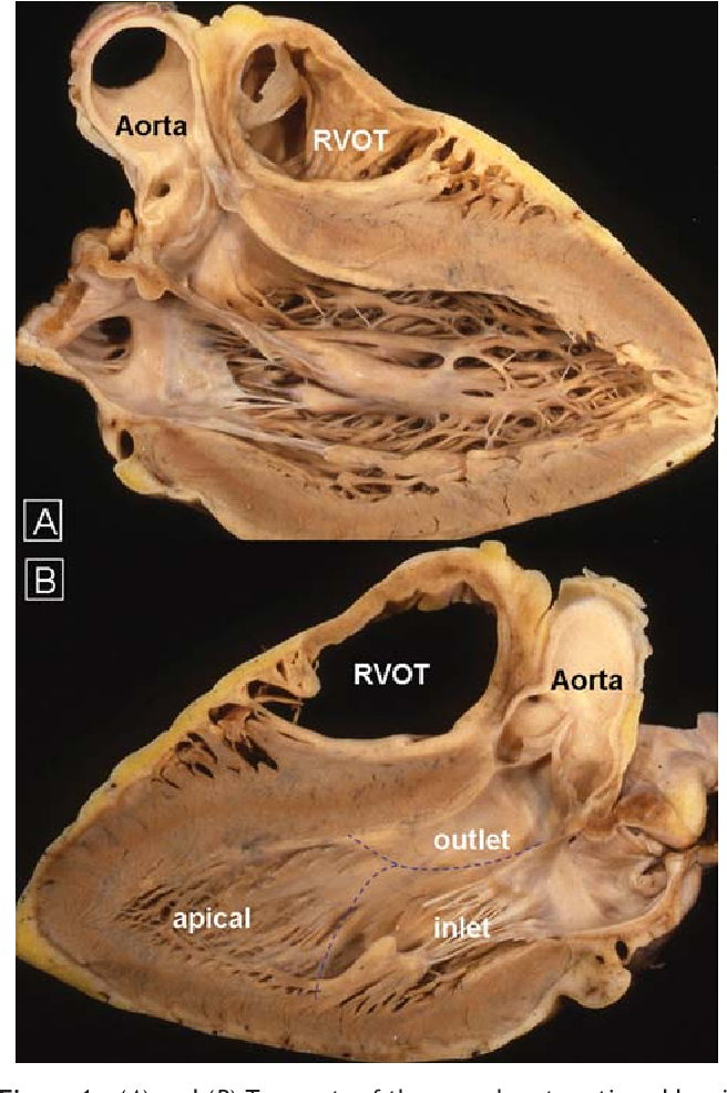 Anatomy and myoarchitecture of the left ventricular wall in normal ...