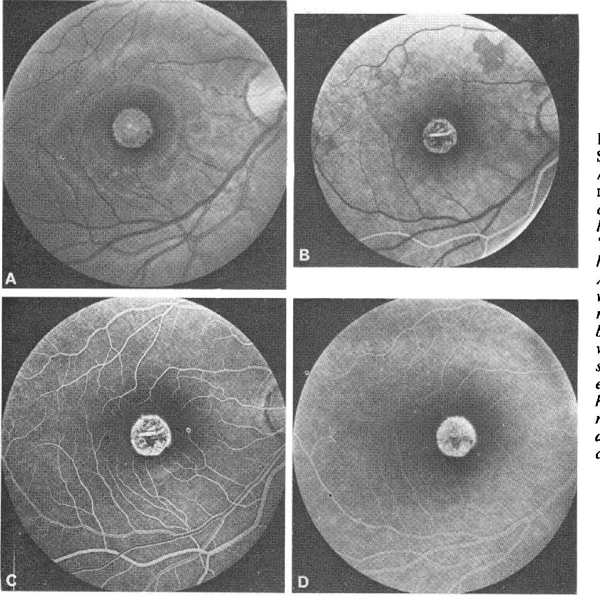 Figure 1 From Hereditary Choroidal Dystrophies Fluorescein