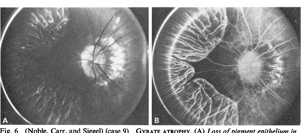 Figure 6 From Hereditary Choroidal Dystrophies Fluorescein