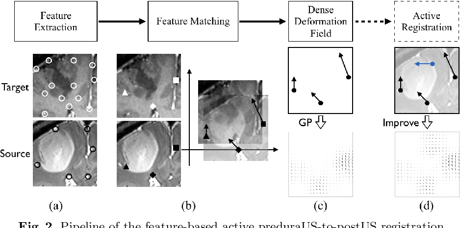 Figure 3 for A Feature-Driven Active Framework for Ultrasound-Based Brain Shift Compensation