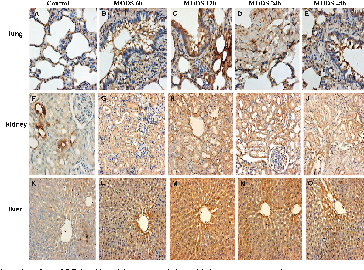 Matrix metalloproteinase-9 as new biomarkers of severity in