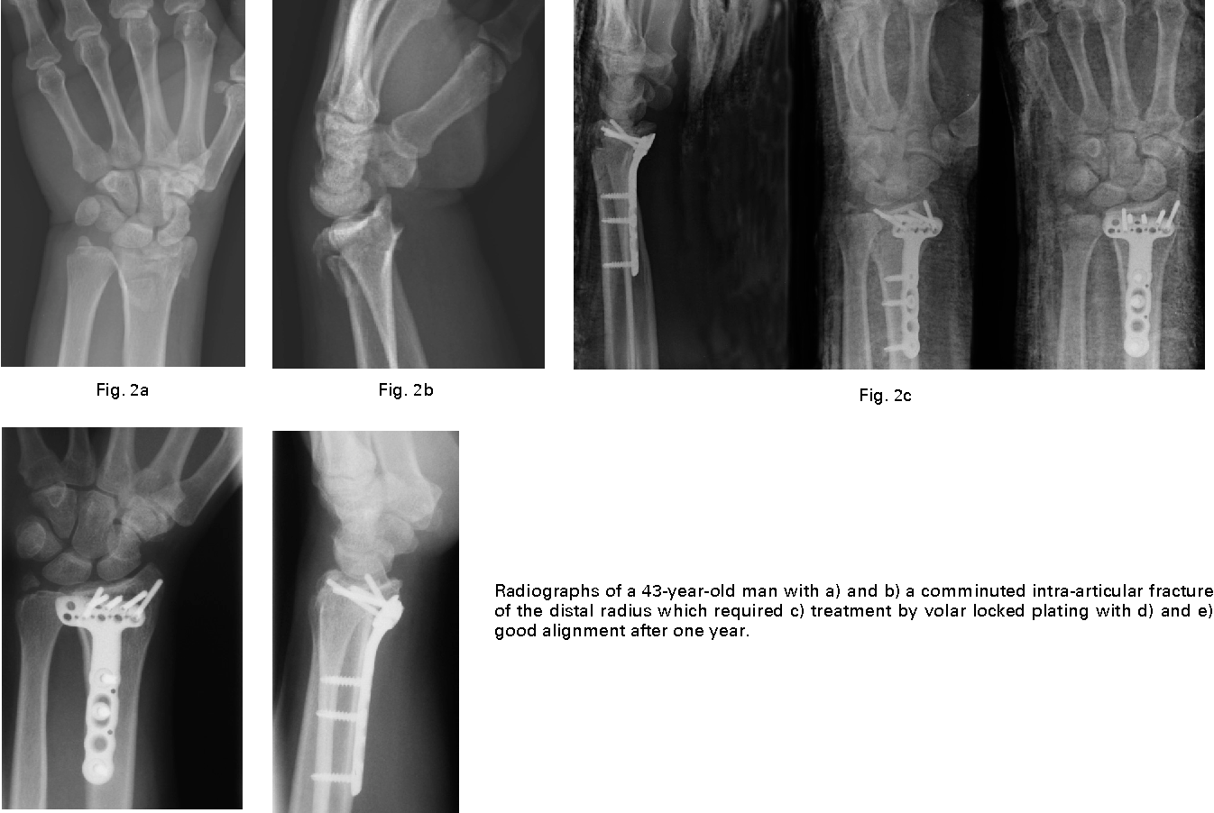 Bridging external fixation and supplementary Kirschner-wire fixation ...