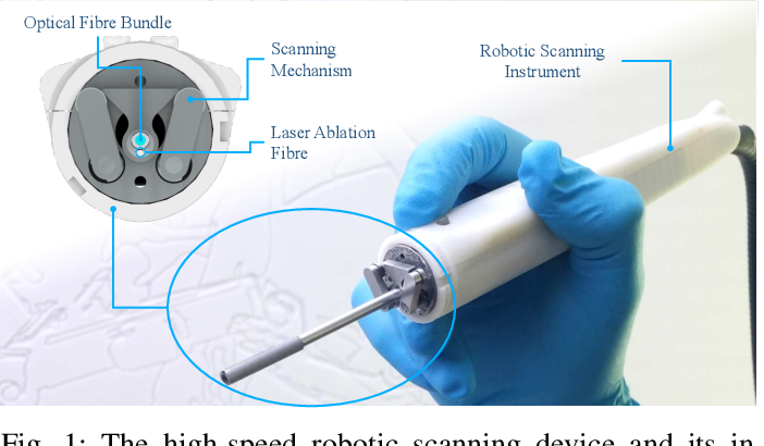 Figure 1 for Intraoperative robotic-assisted large-area high-speed microscopic imaging and intervention