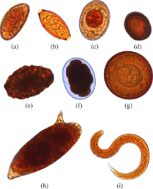 Intestinal Parasites >> Figure 4 From Automatic Segmentation And Classification Of