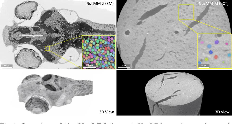 Figure 1 for NucMM Dataset: 3D Neuronal Nuclei Instance Segmentation at Sub-Cubic Millimeter Scale