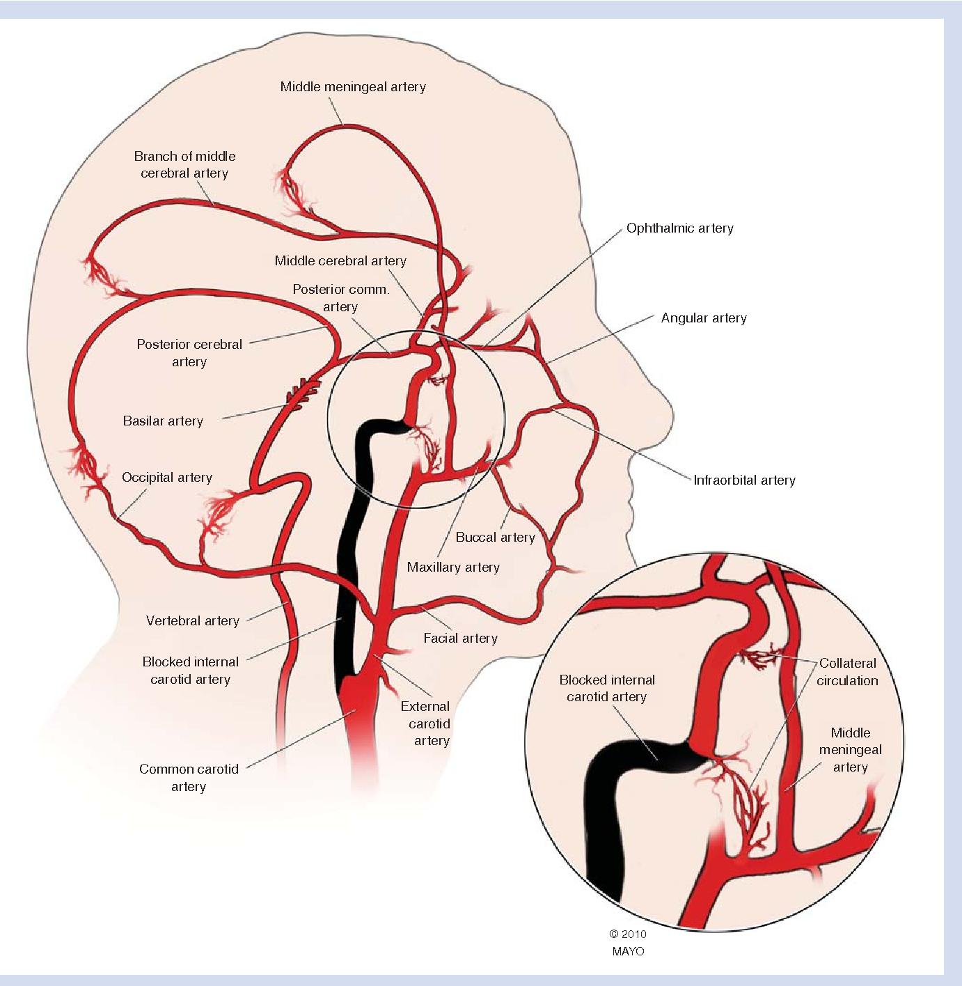 Figure 2 From Carotid Artery Disease Stenting Vs Endarterectomy