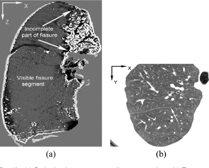Anatomy Guided Lung Lobe Segmentation In X Ray Ct Images Semantic