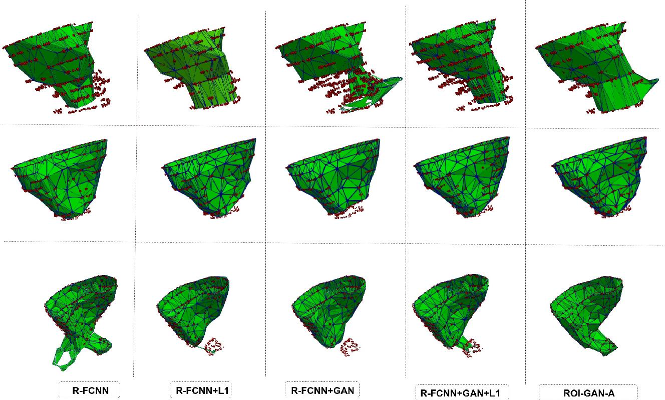 Figure 4 for A Generative Adversarial Model for Right Ventricle Segmentation