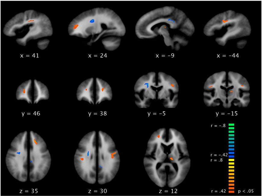 Fig. 3.Whole-brain voxel-by-voxel correlation of FAvalues with hallucination PANSS score (P respective planes are indicated.