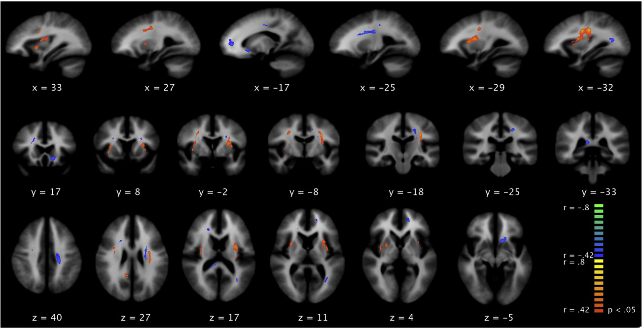 Fig. 4.Whole-brain voxel-by-voxel correlation of FA values with years of illness (Pb0.05, two planes are indicated.