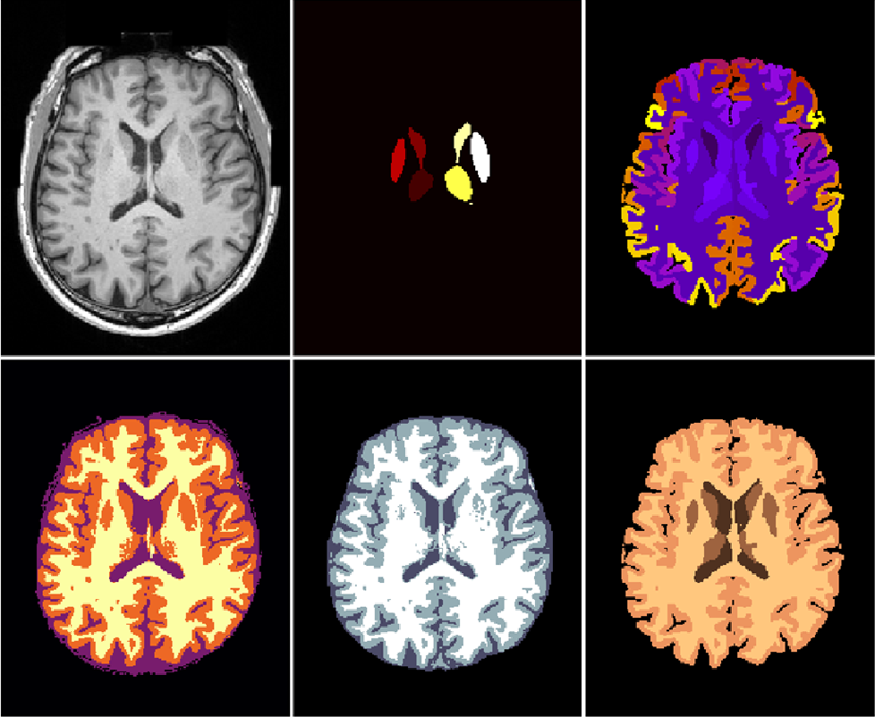 Figure 1 for NeuroNet: Fast and Robust Reproduction of Multiple Brain Image Segmentation Pipelines