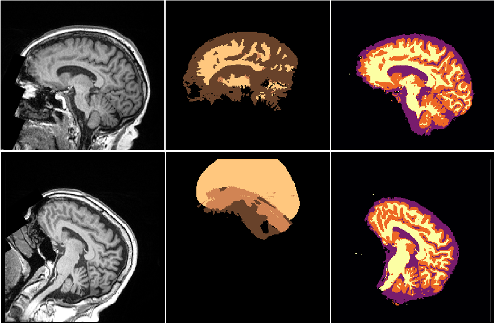 Figure 2 for NeuroNet: Fast and Robust Reproduction of Multiple Brain Image Segmentation Pipelines