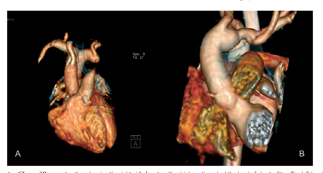 One-stage repair of aberrant left brachiocephalic artery and ...