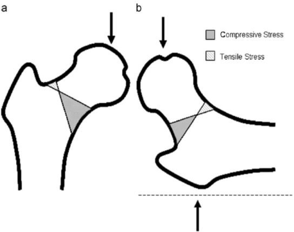 Figure 4 From Biomechanical Testing Of An Exercise For Strengthening