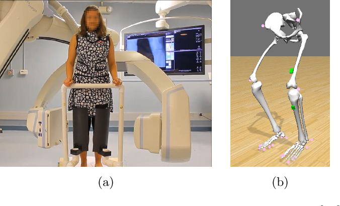 Figure 1 for Rigid and non-rigid motion compensation in weight-bearing cone-beam CT of the knee using (noisy) inertial measurements