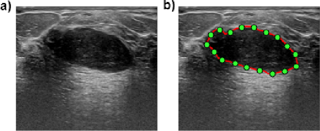 Figure 2 for Breast mass classification in ultrasound based on Kendall's shape manifold