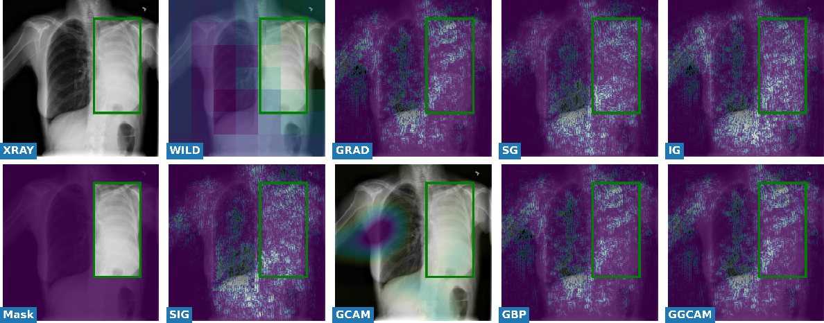 Figure 2 for Towards Trainable Saliency Maps in Medical Imaging