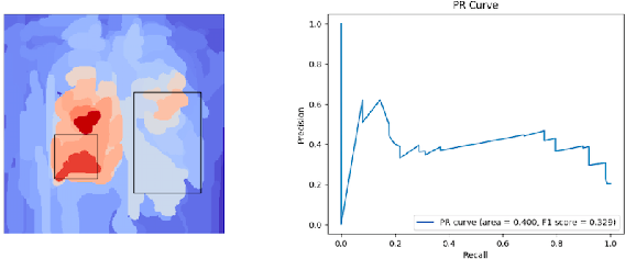 Figure 4 for Towards Trainable Saliency Maps in Medical Imaging