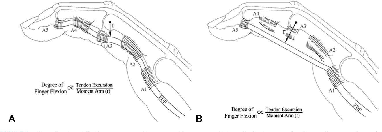 Flexor Pulley System Anatomy Injury And Management Semantic