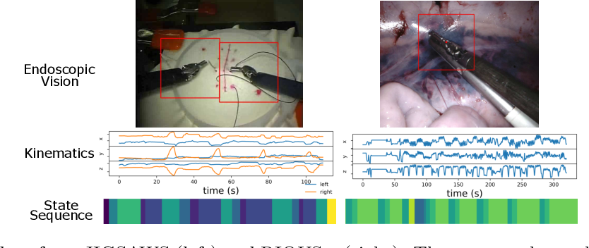 Figure 1 for daVinciNet: Joint Prediction of Motion and Surgical State in Robot-Assisted Surgery