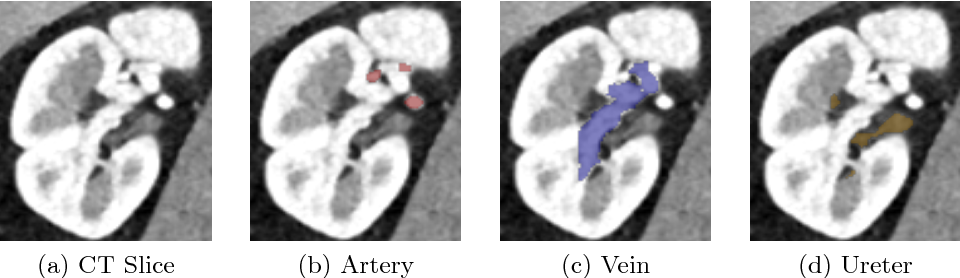 Figure 1 for Kid-Net: Convolution Networks for Kidney Vessels Segmentation from CT-Volumes
