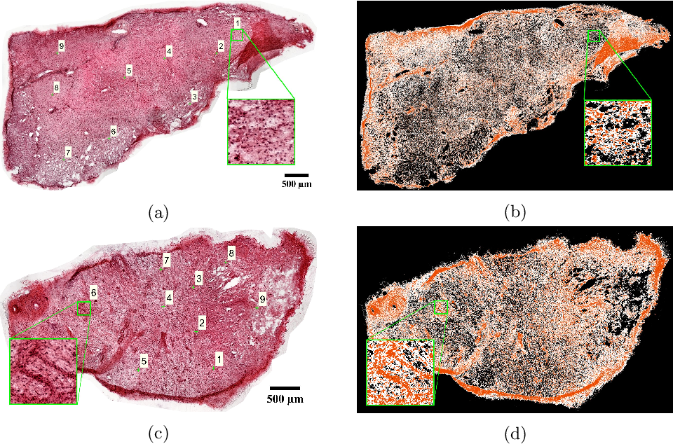 Figure 2 for Whole-Sample Mapping of Cancerous and Benign Tissue Properties