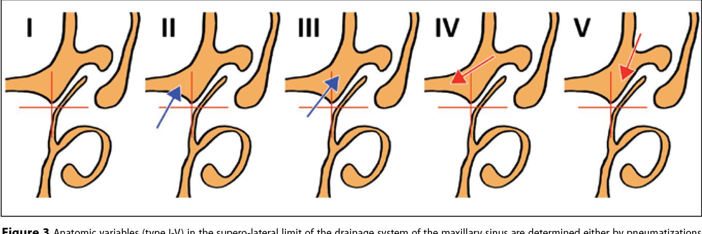 PDF] Anatomic patterns of maxillary sinus drainage