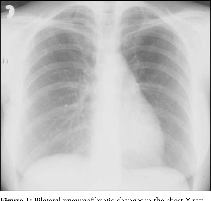Figure 1: Bilateral pneumofibrotic changes in the chest X ray.
