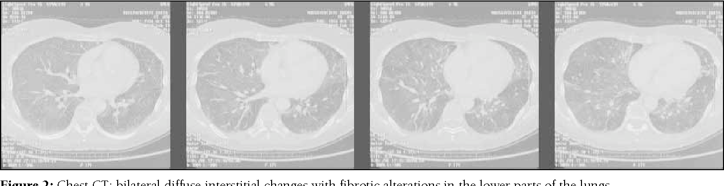 Figure 2: Chest CT: bilateral diffuse interstitial changes with fibrotic alterations in the lower parts of the lungs.