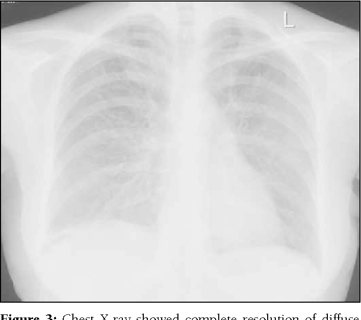 Figure 3: Chest X-ray showed complete resolution of diffuse interstitial changes after prednisolone therapy.