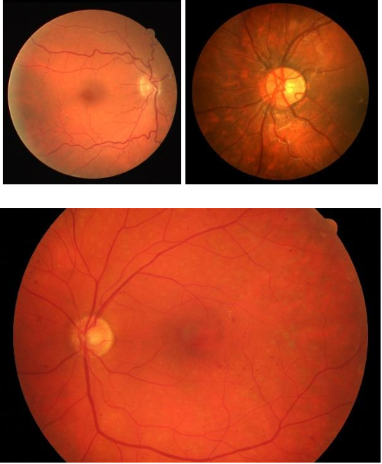 Figure 3 for HybridNetSeg: A Compact Hybrid Network for Retinal Vessel Segmentation