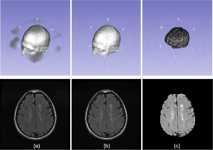 Figure 2 for Multiple Sclerosis Lesion Analysis in Brain Magnetic Resonance Images: Techniques and Clinical Applications