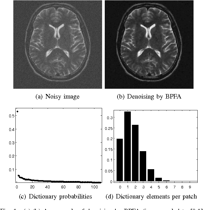 Figure 1 for Bayesian Nonparametric Dictionary Learning for Compressed Sensing MRI