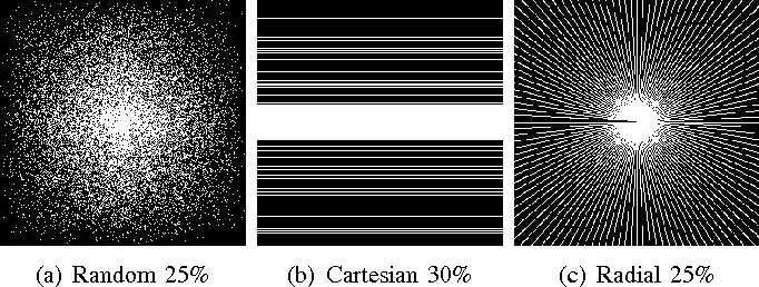 Figure 3 for Bayesian Nonparametric Dictionary Learning for Compressed Sensing MRI