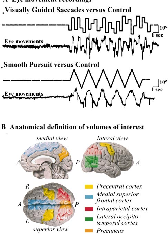 Functional anatomy of pursuit eye movements in humans as revealed by ...
