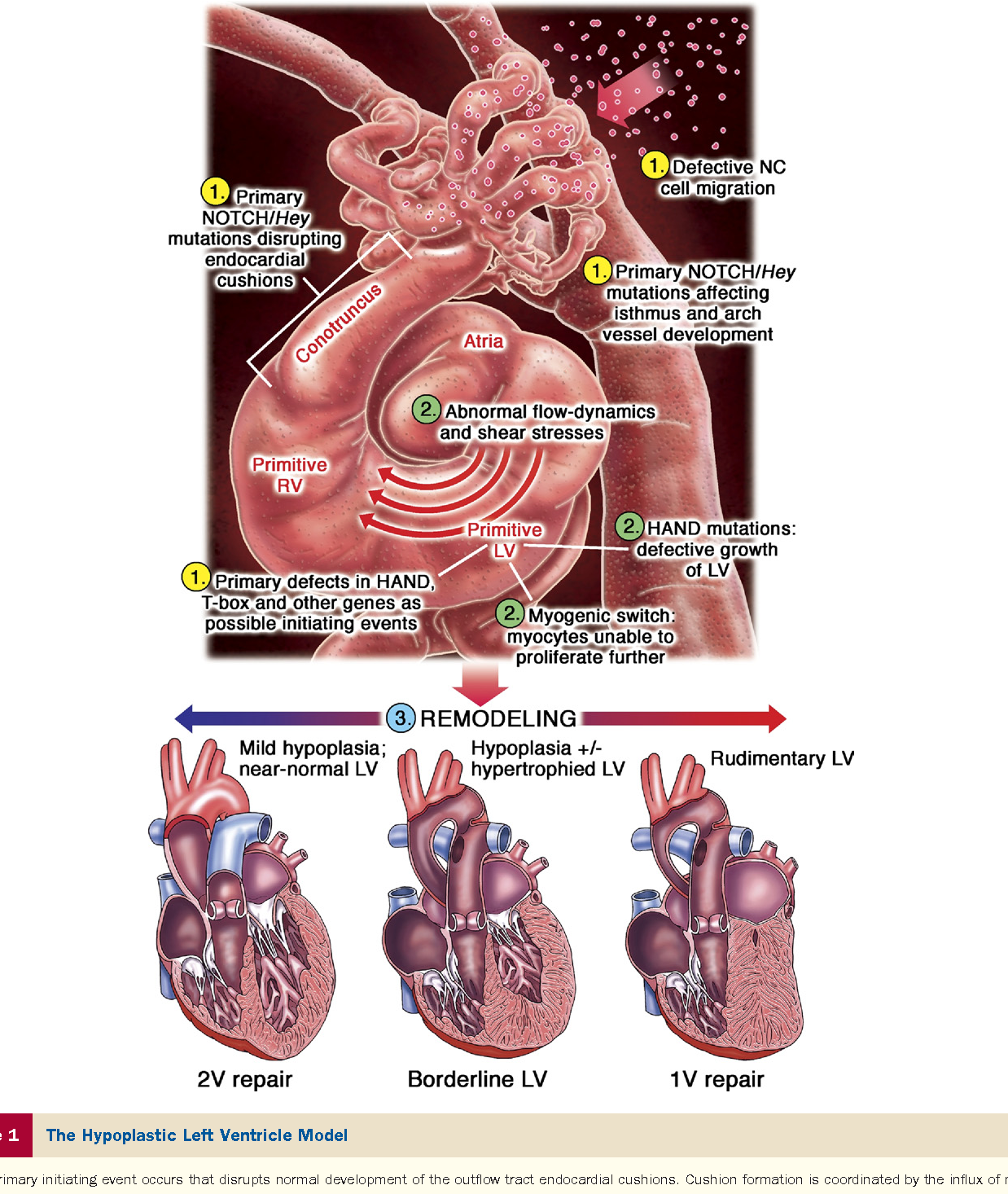 Left ventricular hypoplasia: a spectrum of disease involving the ...