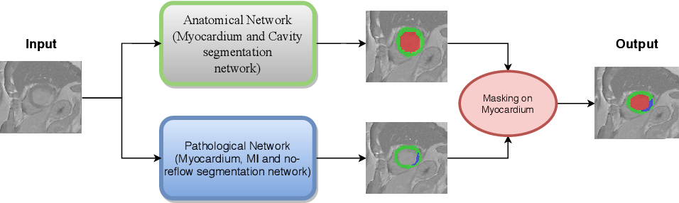 Figure 1 for Automatic Myocardial Infarction Evaluation from Delayed-Enhancement Cardiac MRI using Deep Convolutional Networks