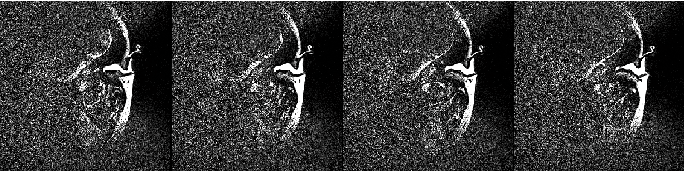 Figure 1 for An Average of the Human Ear Canal: Recovering Acoustical Properties via Shape Analysis