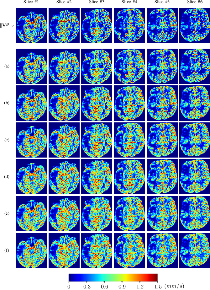 Figure 4 for Perfusion Imaging: A Data Assimilation Approach