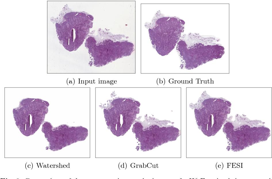 Foreground Extraction for Histopathological Whole Slide Imaging