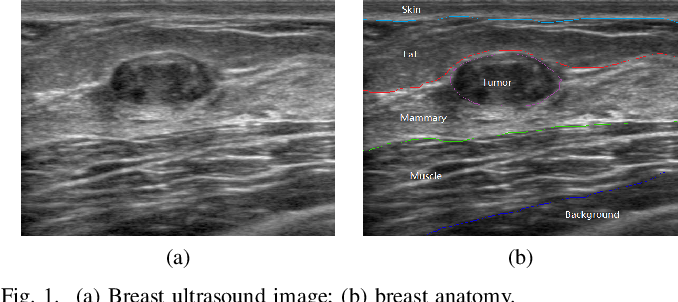 Figure 1 for Fuzzy Semantic Segmentation of Breast Ultrasound Image with Breast Anatomy Constraints