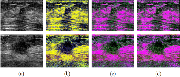 Figure 2 for Fuzzy Semantic Segmentation of Breast Ultrasound Image with Breast Anatomy Constraints