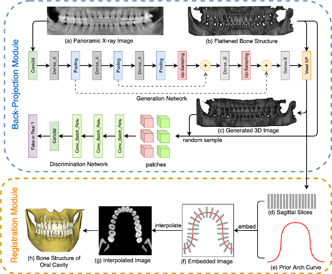 Figure 4 for Oral-3D: Reconstructing the 3D Bone Structure of Oral Cavity from 2D Panoramic X-ray