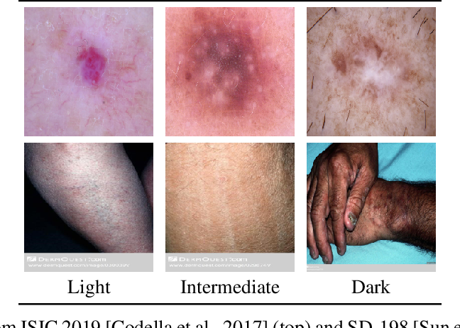 Figure 3 for Out-of-Distribution Detection in Dermatology using Input Perturbation and Subset Scanning
