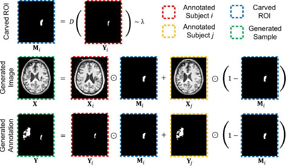 Figure 1 for CarveMix: A Simple Data Augmentation Method for Brain Lesion Segmentation